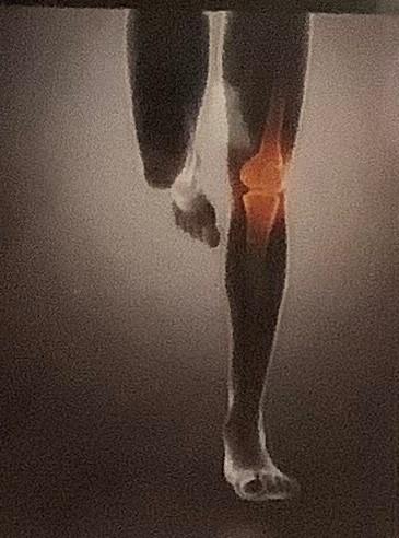 chiropractor help you run faster